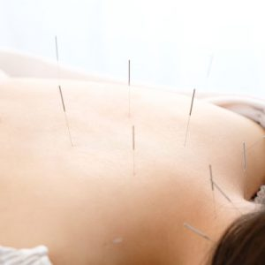 acupuncture treatment promotion